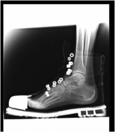 X-ray of foot in steel toe capped work boot Trauma Rounds Crush Injuries to the Foot