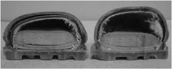 Crush Injuries of the Foot - Effect of Steel Toe Boots posted in Trauma Rounds by Arun Shanbhag