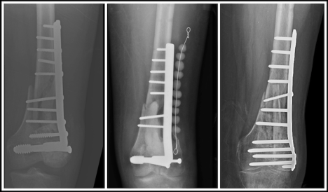 X-ray of distal femur non union after Libya war injuries and treatment in Trauma Rounds
