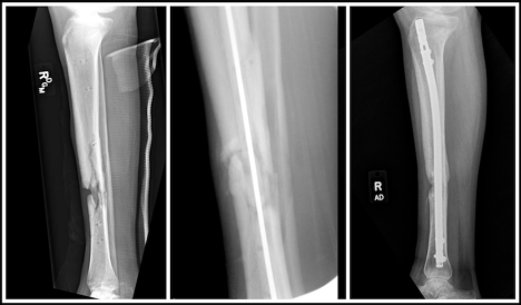 X-ray of diaphyseal tibia non union after Libya war injuries and treatment in Trauma Rounds