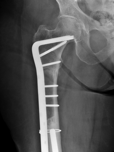 hip fracture treatment in older patients When hip fracture is detected early, appropriate treatment can  alert to the  possibility of hip fracture, particularly in a patient who is older than.